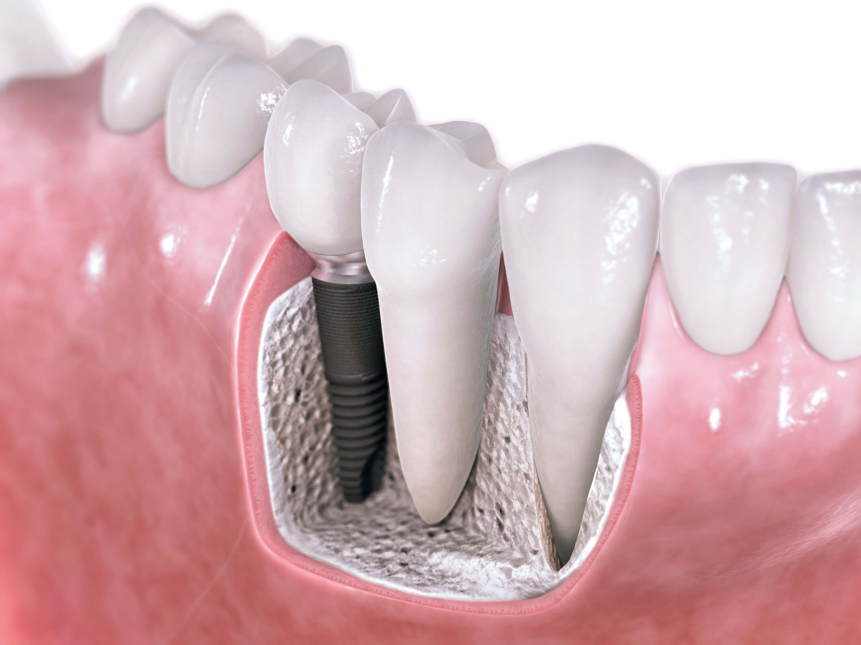 Implant zęba - Poznań cena