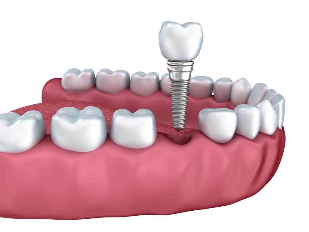Wprowadzanie implantu zębowego - gabinet Poznań, ceny od 2500zł
